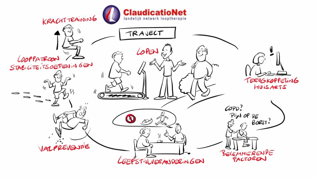 claudicationet traject